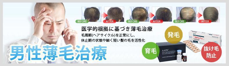 男性薄毛治療